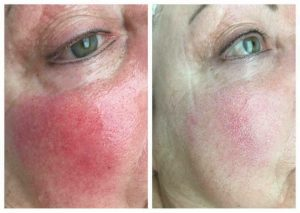 Couperose Rosazae-cheeks reddening Red-Nose-Anti-Redness-by-Juchheim-Mainz